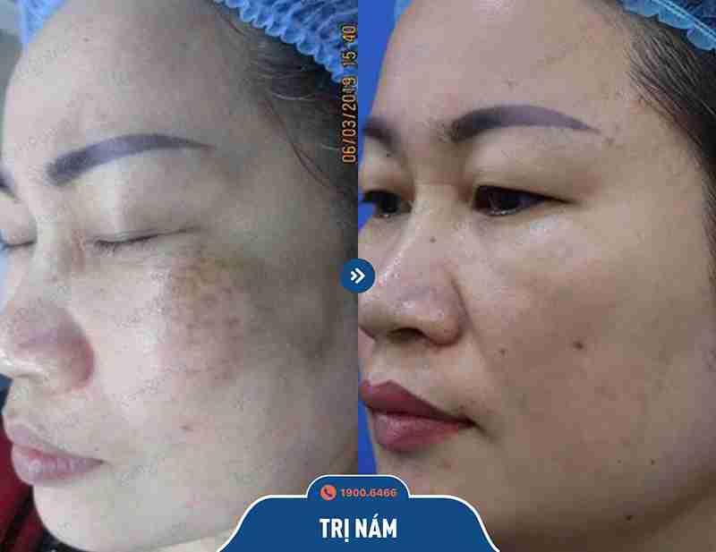 Hình ảnh khách hàng sau khi chữa nám tại kangnam