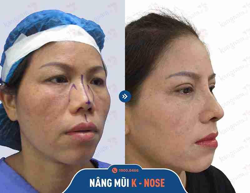 kết quả phẫu thuật thẩm mỹ mũi
