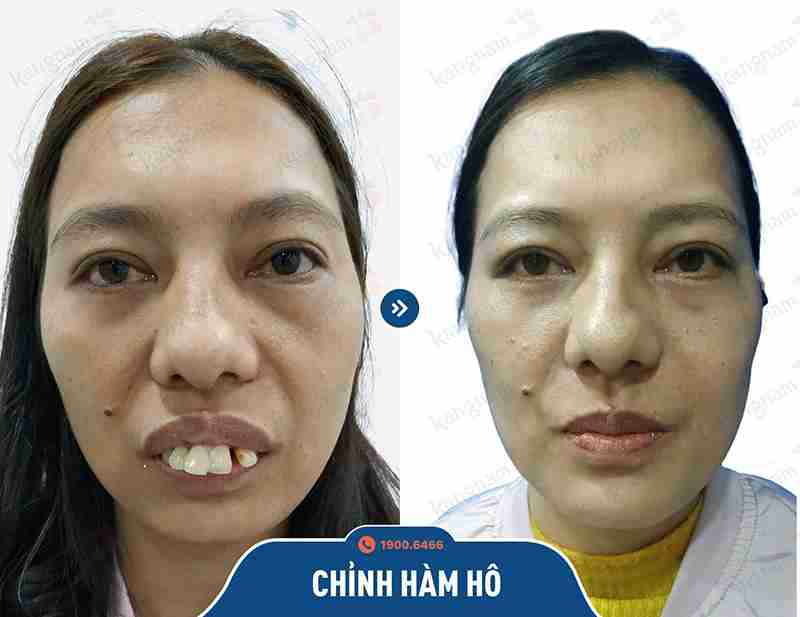 Khách hàm phẫu thuật hàm hô tại kangnam