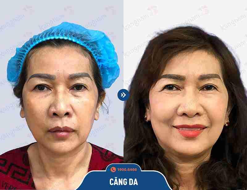 Công nghệ căng da mặt hiện đại và an toàn