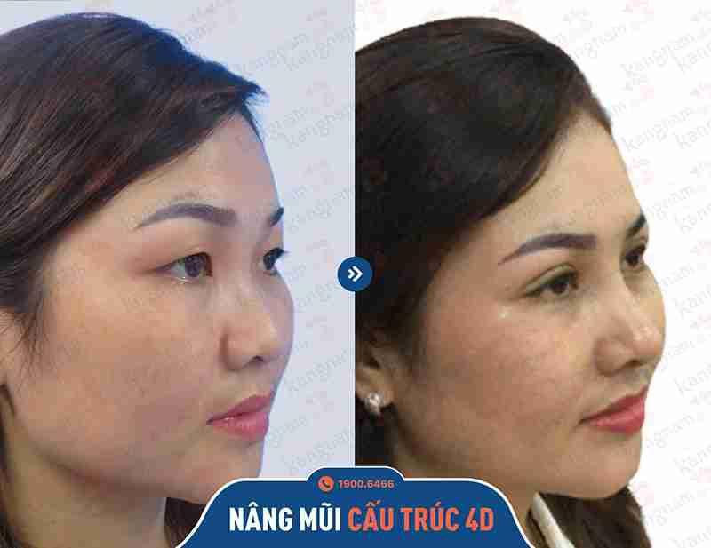 Kết quả nâng mũi tại Kangnam