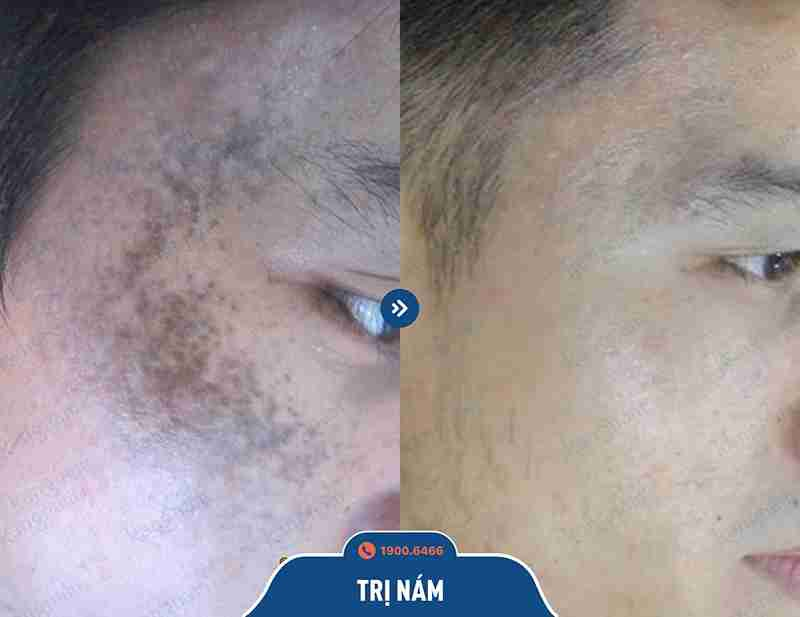 Hình ảnh trước và sau khi chữa nám tại bvtm kangnam