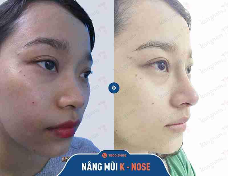 kết quả khách hàng làm mũi kangnam