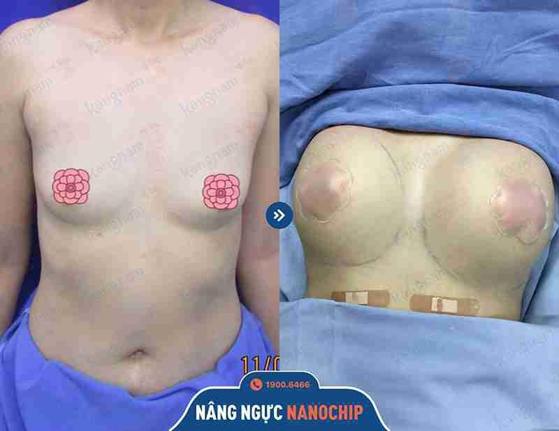Cải thiện size vòng 1 bằng công nghệ nâng ngực