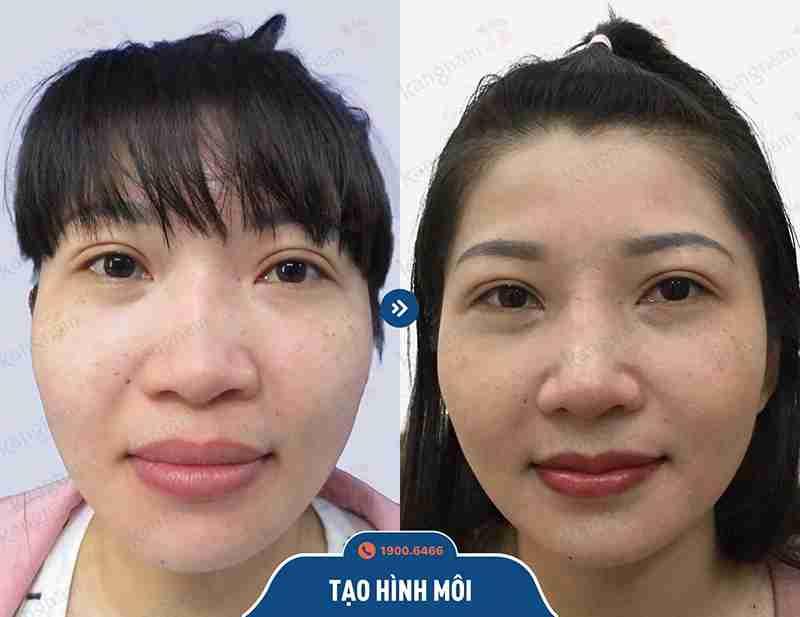 Chia sẻ hình ảnh khách hàng tạo hình môi tại kangnam