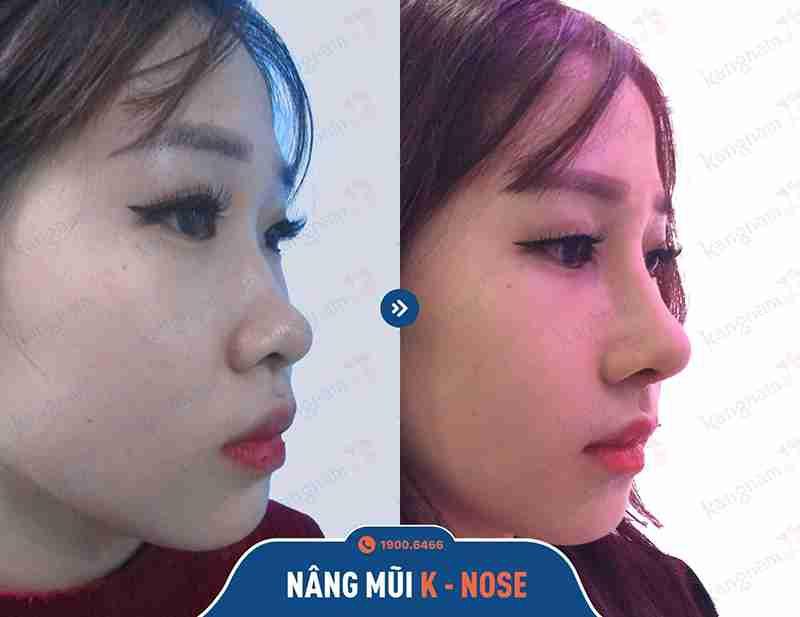 nâng mũi thẩm mỹ hiệu quả và an toàn
