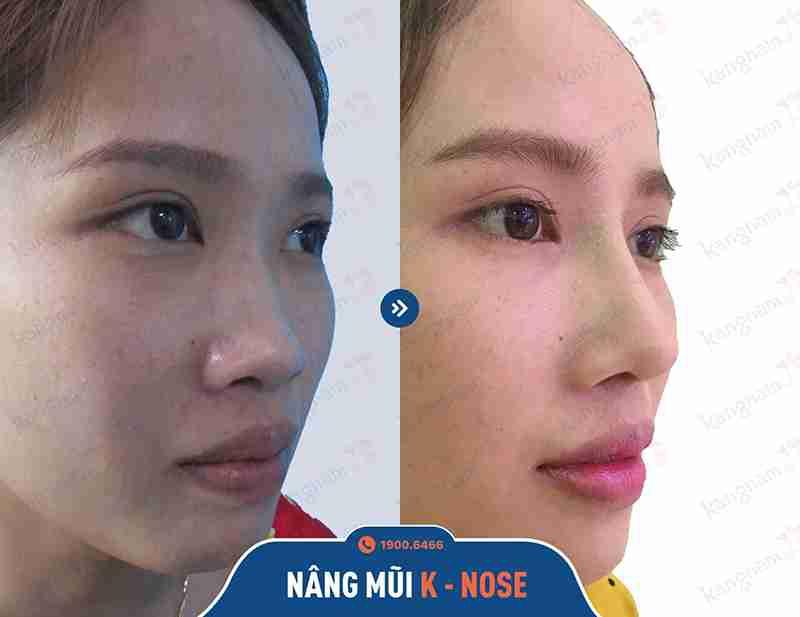 chia sẻ hình ảnh khách hàng kangnam sau khi nâng mũi