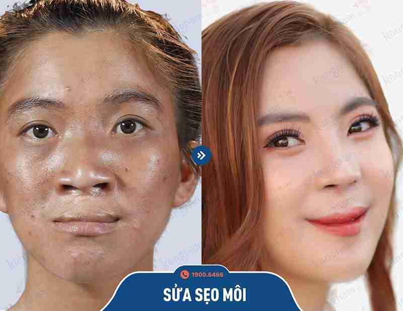 Trước và sau khi tạo hình môi