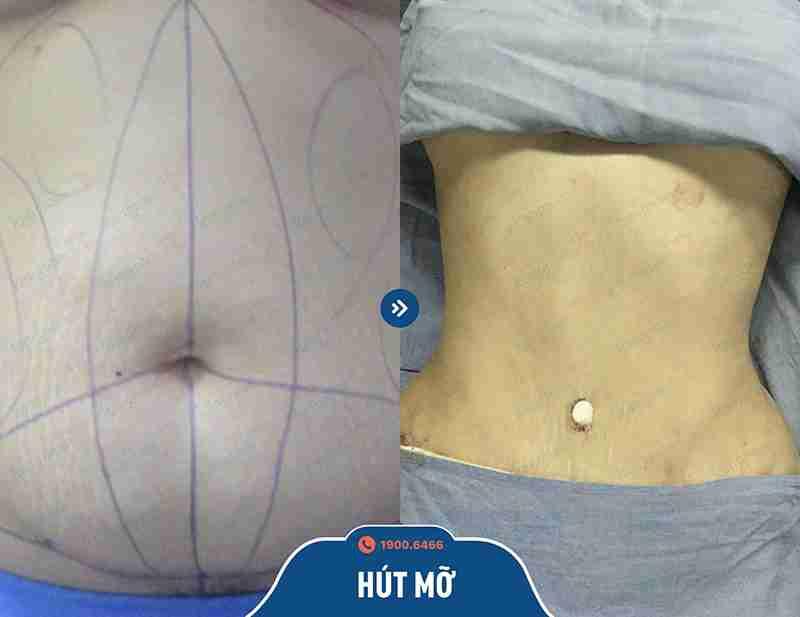 Chia sẻ hình ảnh trước và sau khi giảm mỡ tại kangnam