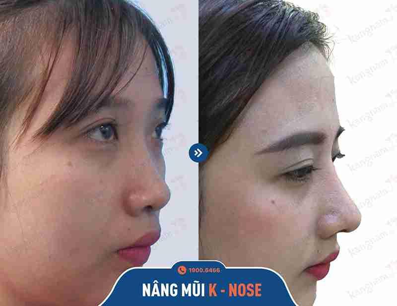 kết quả sửa mũi đẹp khách hàng